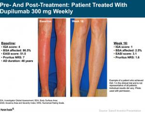 Golden Era for Atopic Dermatitis