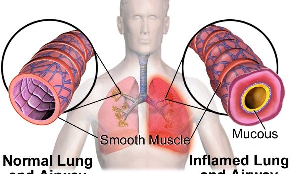 Cost of Asthma Medicine is a Barrier to Adherence Worldwide
